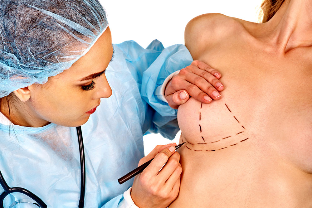 breast-augmentation-sydney